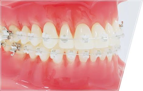 ワイ「歯並び悪いし矯正でもするか」歯医者「100万円です」