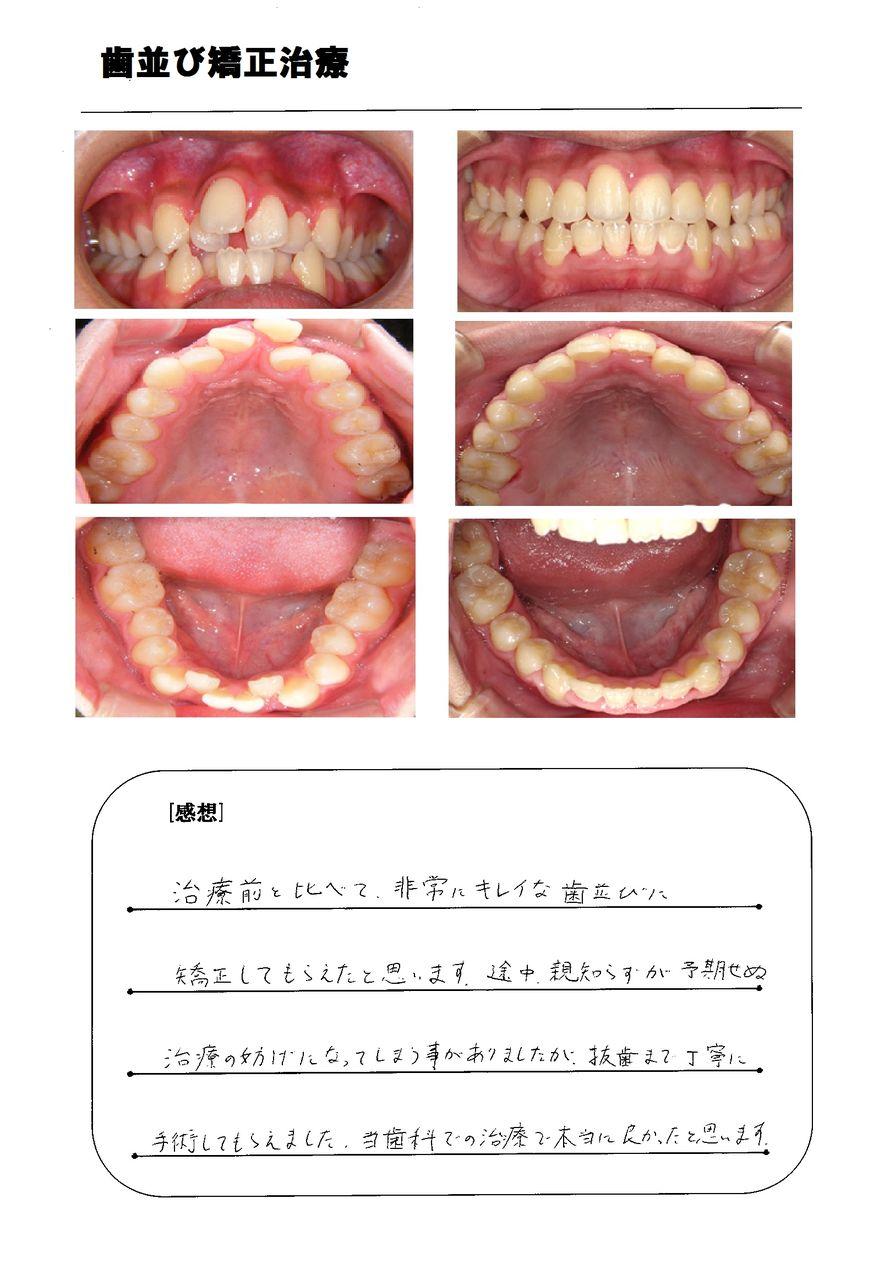 歯並び 直す