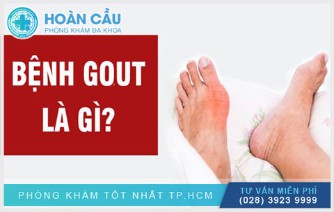 mac-benh-gout