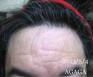agaga-hairline201354