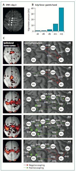 神経ネットワーク脳卒中3