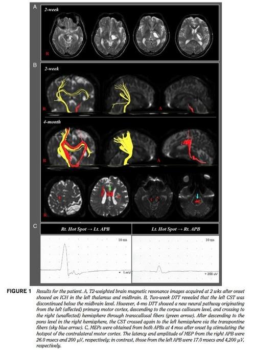 脳内出血患者運動回復メカニズム1