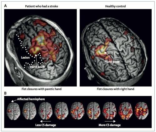 神経ネットワーク脳卒中