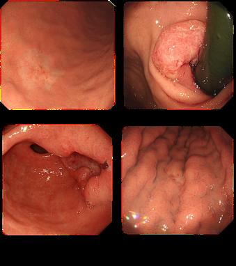 ブログ 初期 症状 スキルス 胃がん