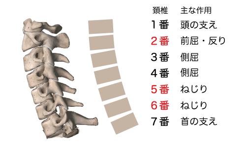頚椎後弯症,激痛,吐き気,嘔吐,痛い,原因,対策,悪化,骨の歪み,つらい