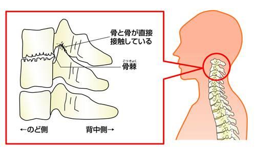頚椎後弯症,激しい痛み,吐き気,嘔吐,痛い,原因,対策,悪化,骨歪み湾曲