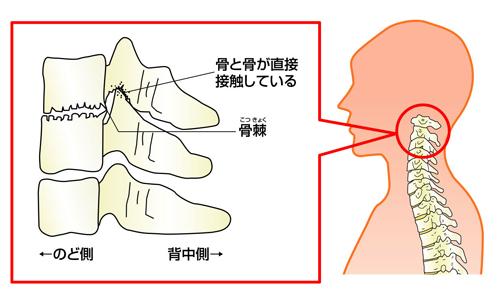 線維筋痛症,後弯症,頚椎症,首や身体.神経の痛み,激痛,嘔吐,辛い