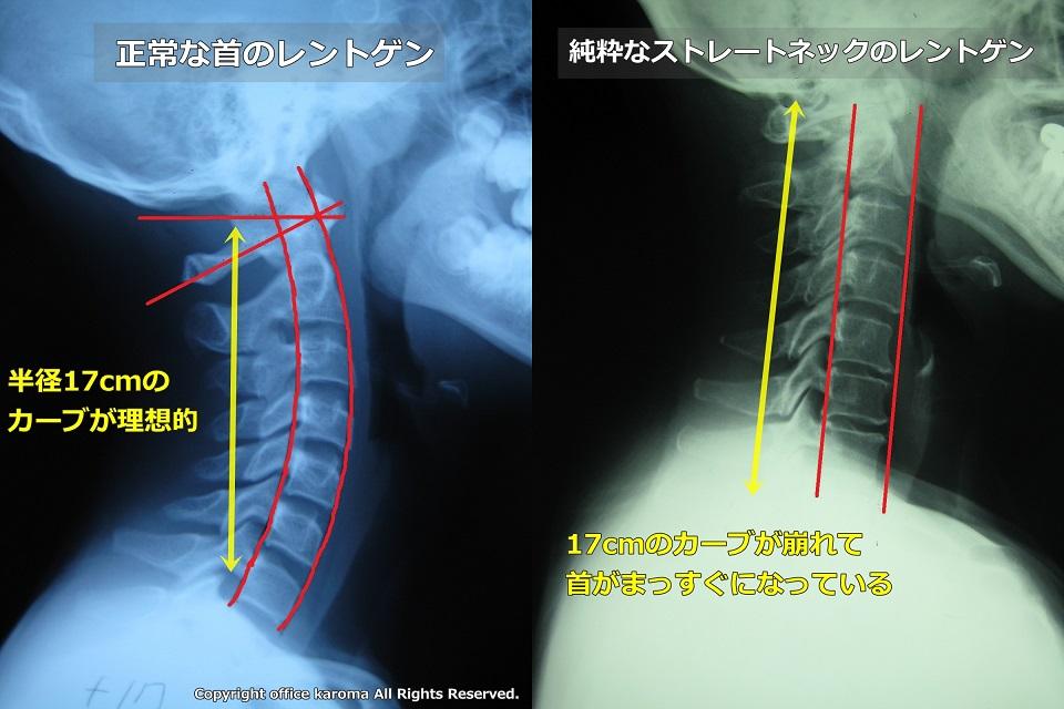 頚椎後弯症,激しい痛み,吐き気,嘔吐,痛い,原因,対策,悪化,疲労蓄積