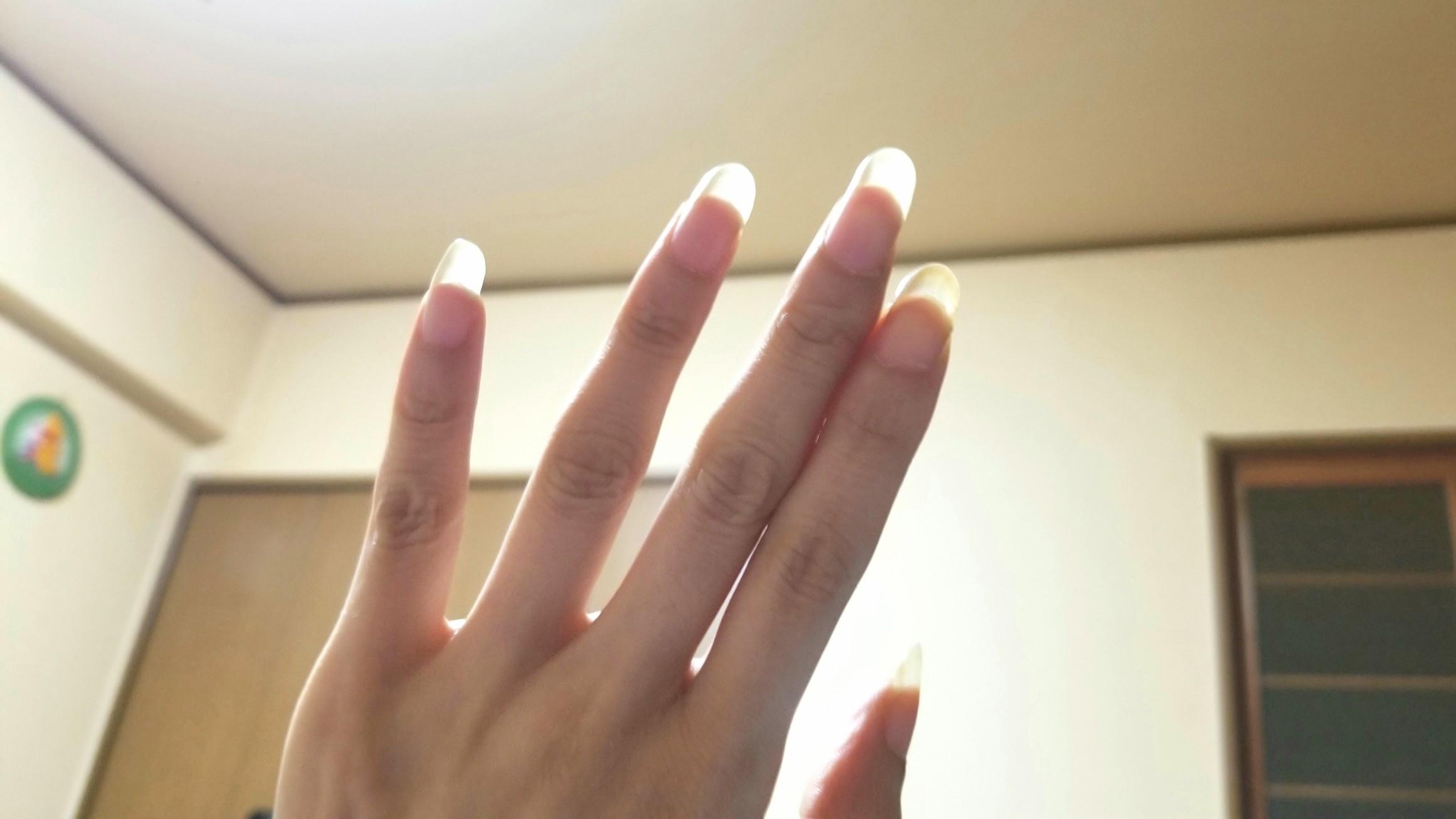 指のむくみ引いた治った,ラドン吸引器,ホルミシス,激しい睡魔