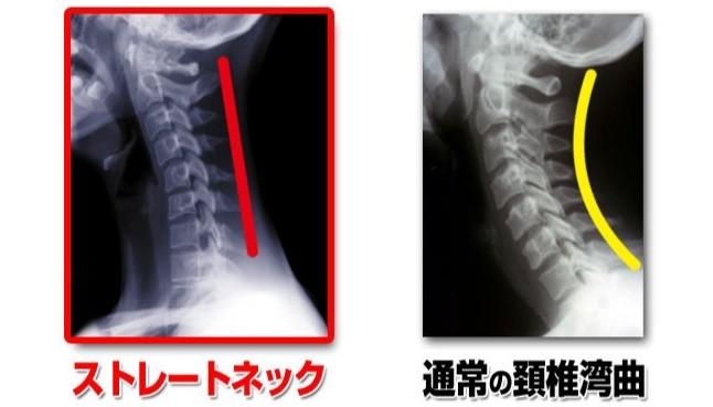 頚椎後弯症,激痛,吐き気,嘔吐,痛い,原因,対策,悪化,骨の湾曲,つらい