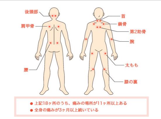 線維筋痛症症状,吐き気,激痛,冷え,マッサージ,筋膜リリース,温める