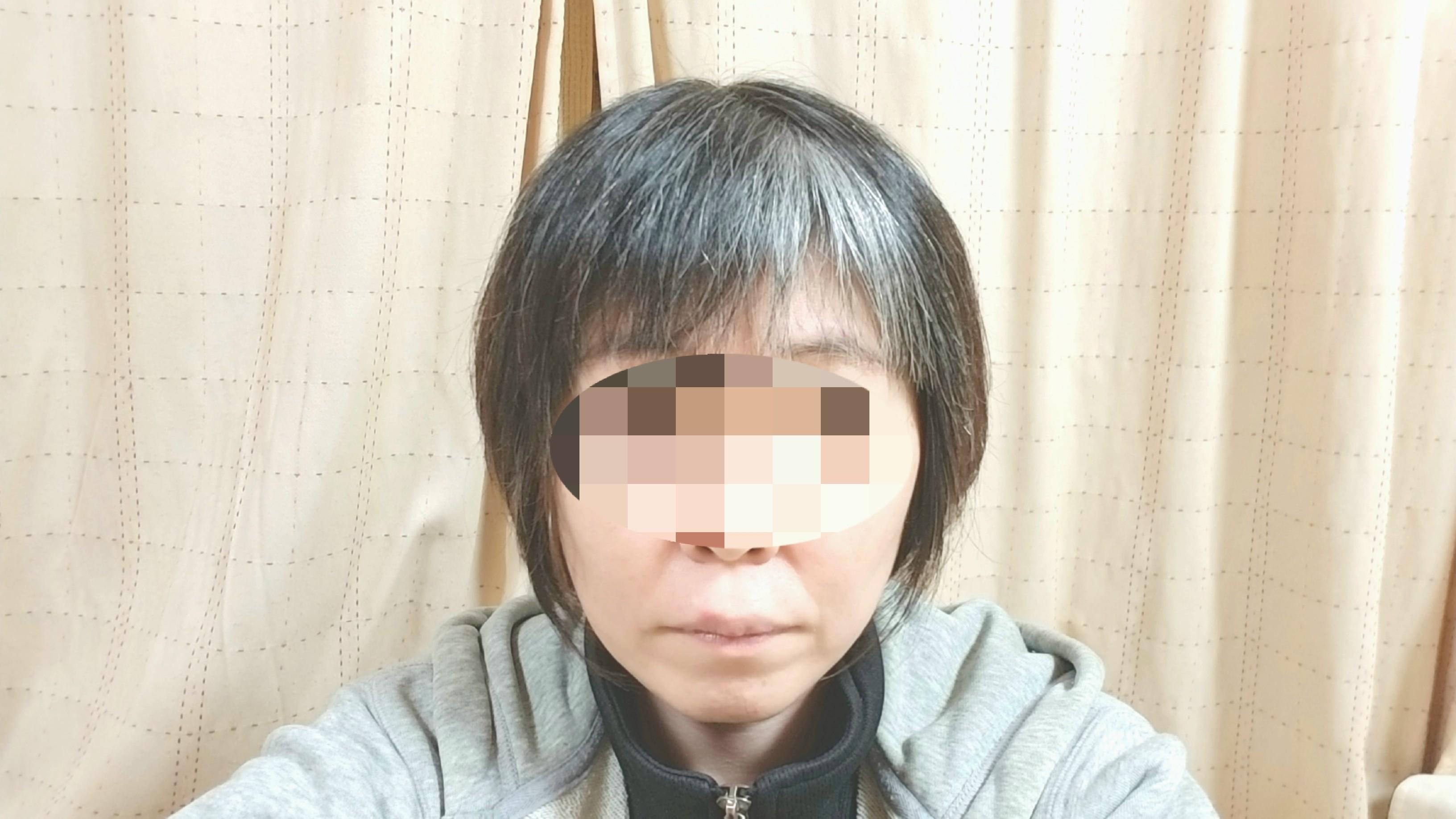 線維筋痛症,頚椎症後弯症の痛み,ずっと痛い,人気,散髪,髪を切った