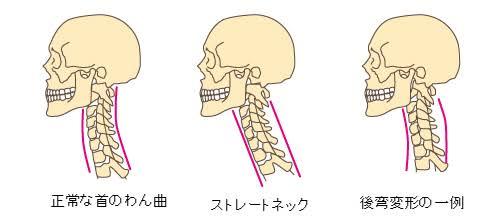 医者からの警告,後弯症,頚椎症,首や身体.神経の痛み,激痛,嘔吐,辛い