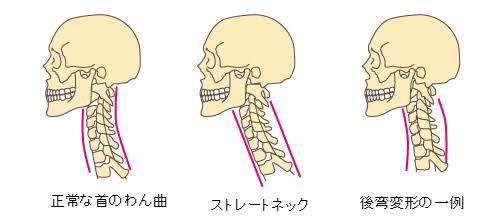 頚椎後弯症,激しい痛み,吐き気,嘔吐,痛い,原因,対策,悪化,骨の歪み