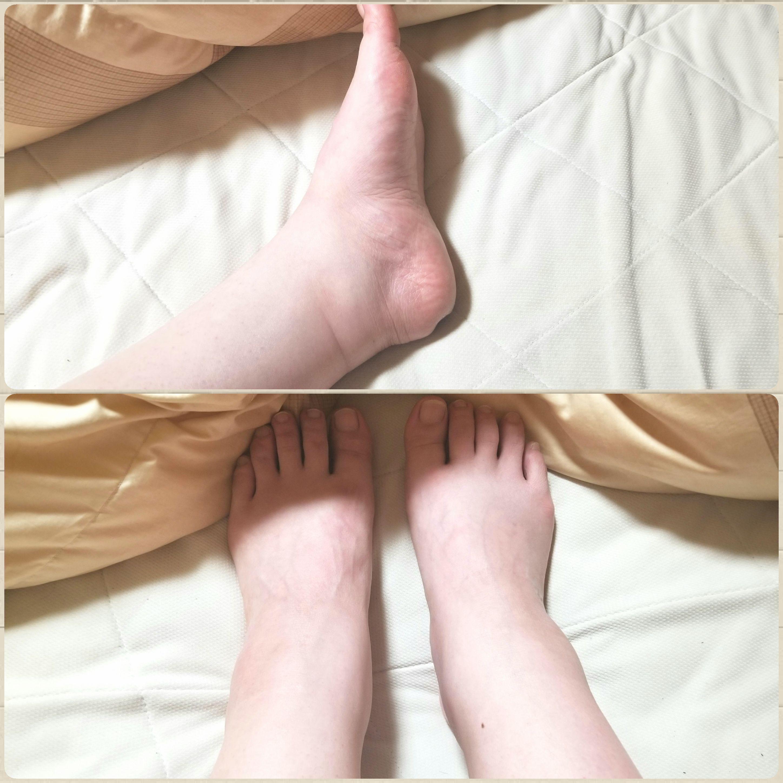足の浮腫み,痛み,パンパン,辛い,身体のあちこちが痛い,ゾウみたい