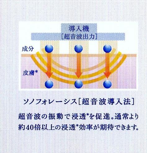 超音波導入6