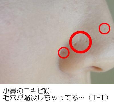 ニキビ跡 小鼻の陥没毛穴