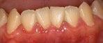 歯ぐきの腫れ