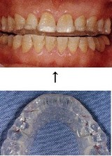 歯 ぎしり
