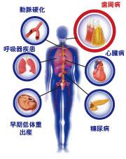 歯周病と身体