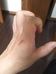 ひきつる指