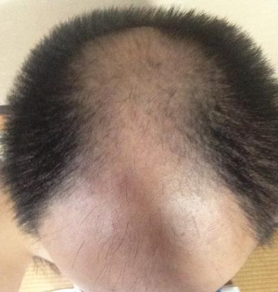 head-hair