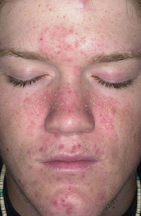 症状 皮膚 エイズ