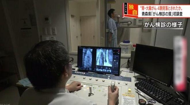 【驚愕】胃がんや大腸がんの検診、4割を見落としていた!死亡率増加の要因か 青森県の調査