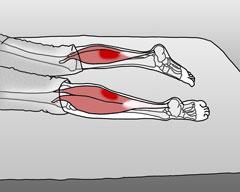 symptoms-calf