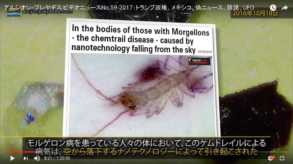 モルゲロン病 ケムトレイルAPN59