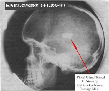 松果体石灰化 pineal-gland-calcification