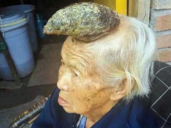 【画像】中国、おばあさんの頭に角のようなものが生えた