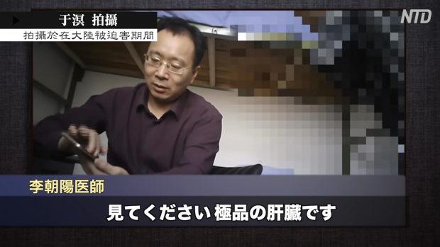 中国、臓器刈り「肝臓は豊富にある、2週間で手配できる、早ければ1週間」