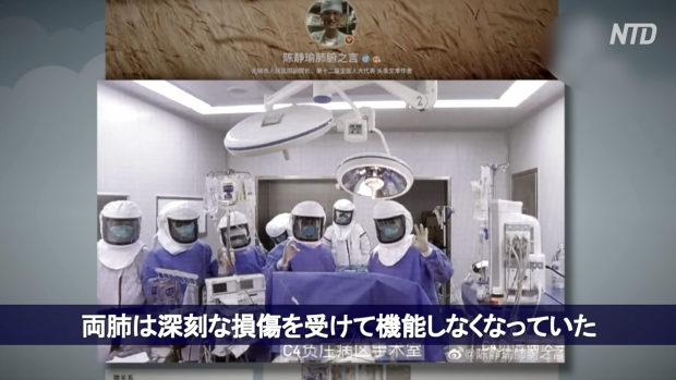 中国、新型コロナウイルス感染者の両肺移植に成功!ネット「肺はどこから?」
