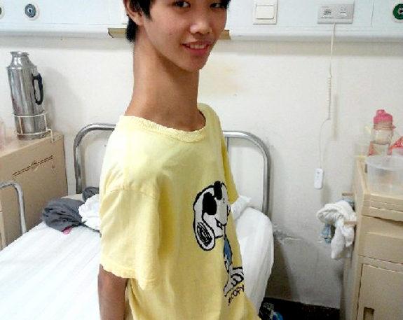 【中国】マルファン症候群で首が長くなってしまった少年3