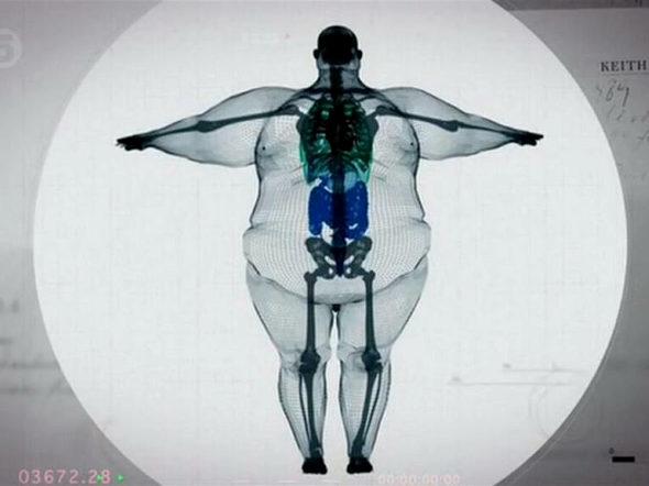 【画像】体重180kgの男性の体を透かすとこうなってるらしい