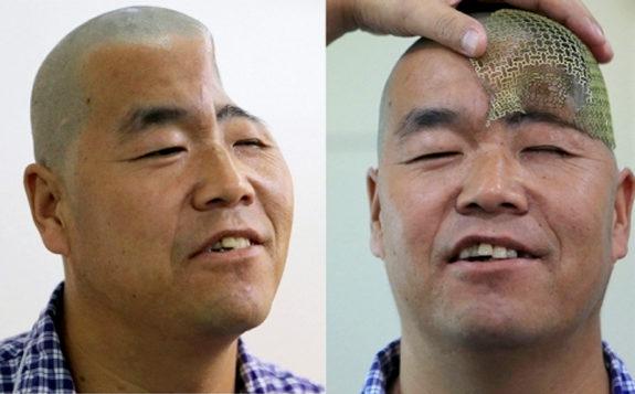 【動画】中国、転落事故で陥没の頭蓋骨を「3Dプリンター」で再建!手術成功! [海外]