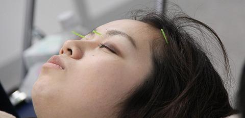 美顔になる美容鍼灸5