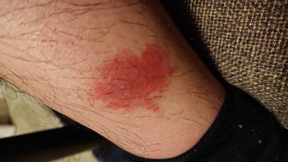 ブヨに刺された脚