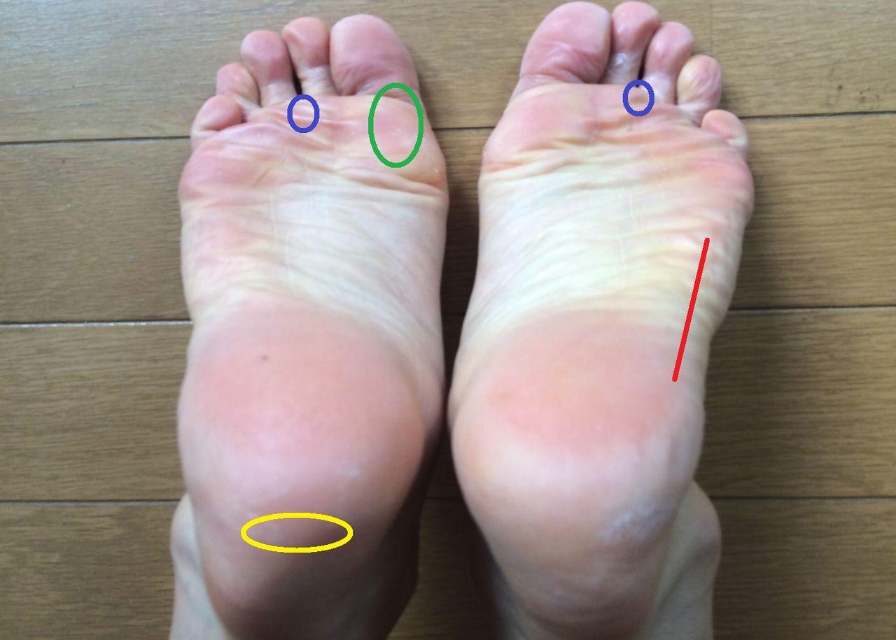 外側 裏 痛い の 足