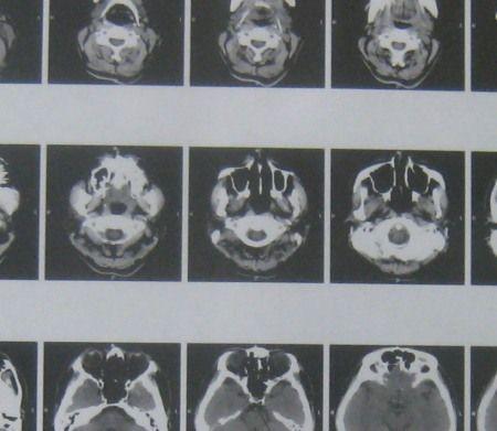 脳神経外科で脳の断層写真を撮影