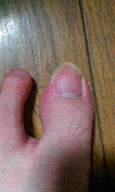 負傷した爪とは違い健康なピンク色をしている