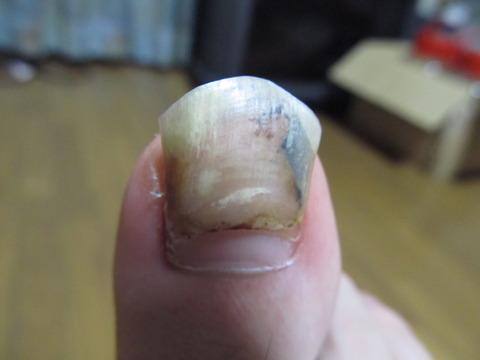 マラソンで内出血した足の爪