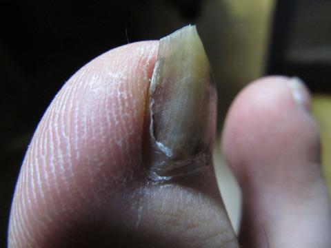 高解像度の爪画像2
