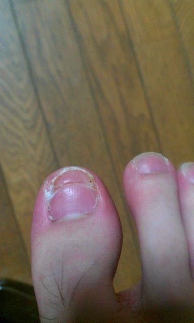 2011年8月29日 ミチミチっとねじりとった後の新しい爪