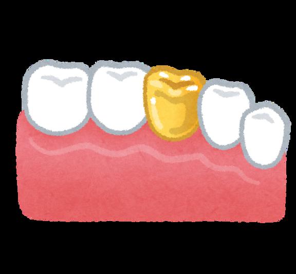 teeth_kinba