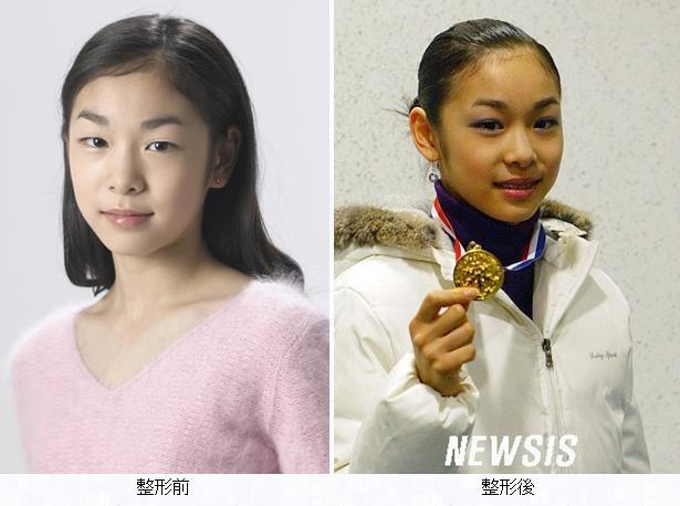【韓国】「私は醜い」…韓国大学生の9割以上が美貌コンプレックス