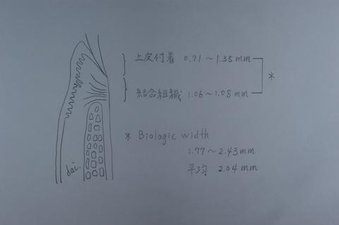 DSC01389