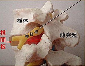 頸椎見本2