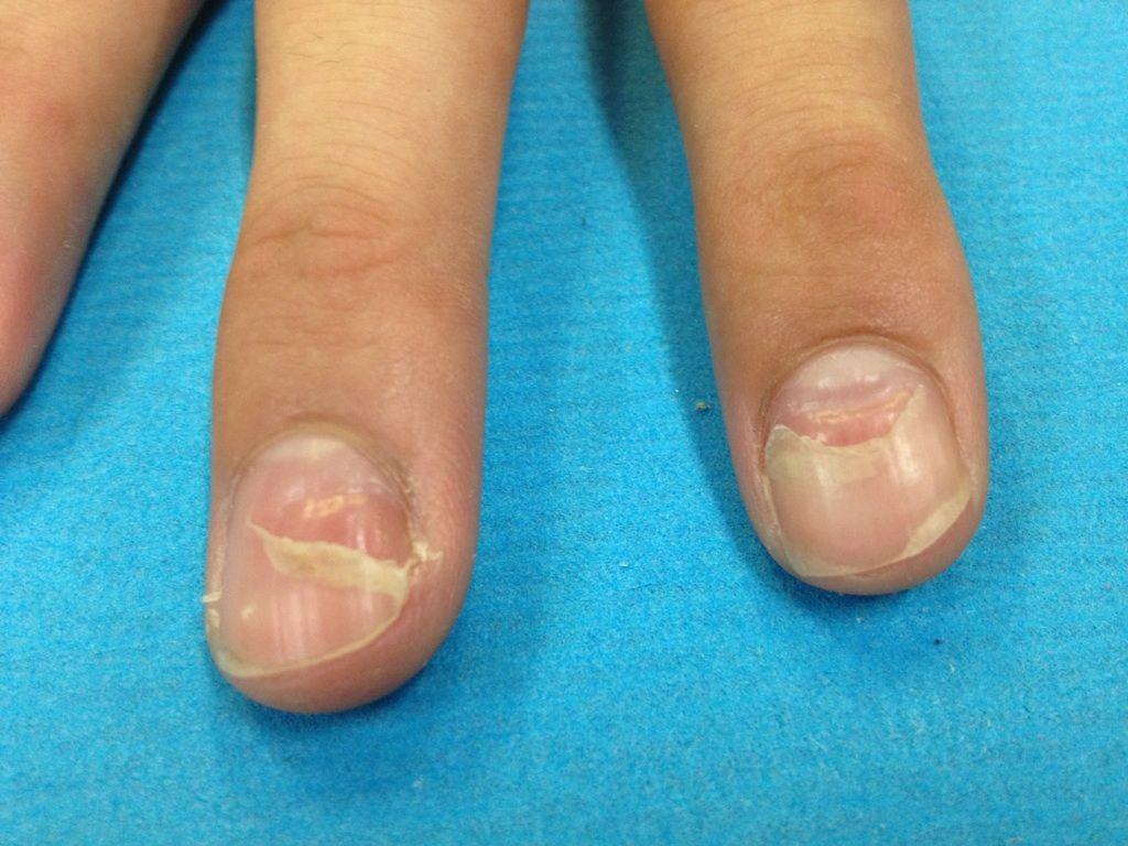 手足口病 爪 剥がれる 対処法